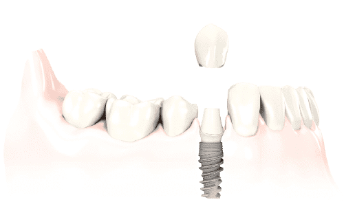 dientes-fijos-malaga