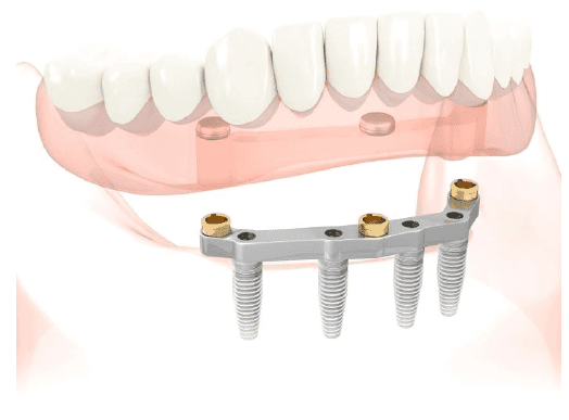 dientes-malaga