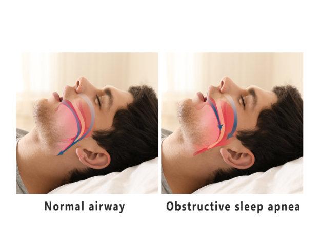 apnea-sueño-malaga