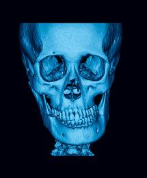 Asimentria Facial