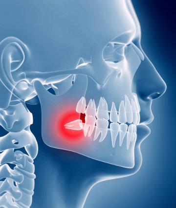 cirugia-oral-malaga