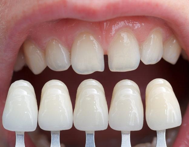 estetica-dental-malaga