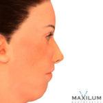 hipoplasia-mandibular-malaga