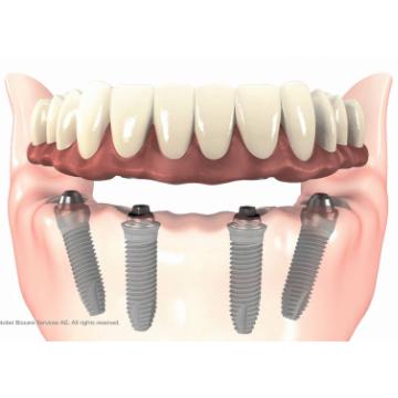 implantes-malaga-precios