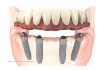 implantes dentales malaga