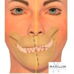Asimetria mandibular Malaga