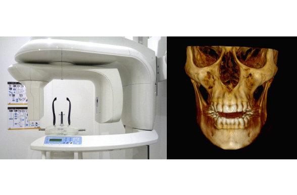 tecnologia-clinica-dental-malaga