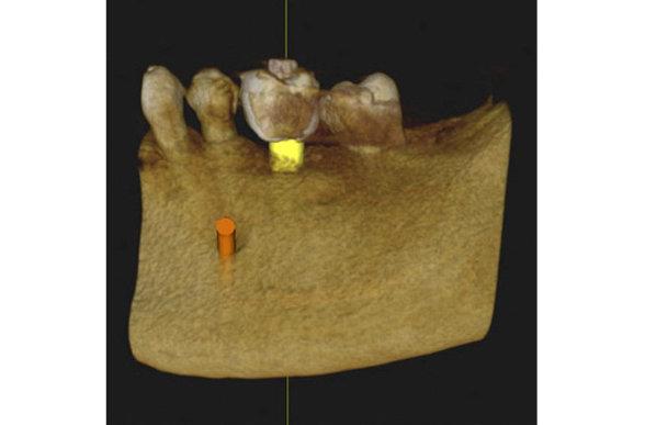 tecnología maxilofacial